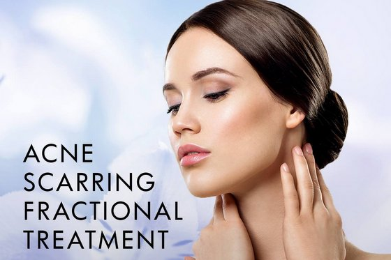 Acne Scarring Fractional Treatment Singapore.